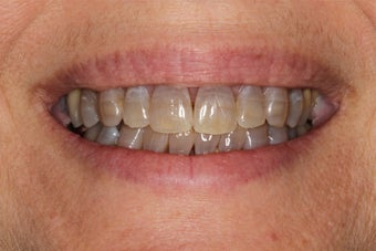 Porcelain Veneers before 391564