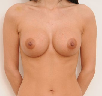 Breast Augmentation after 321330