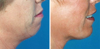 Chin Implant before 642997
