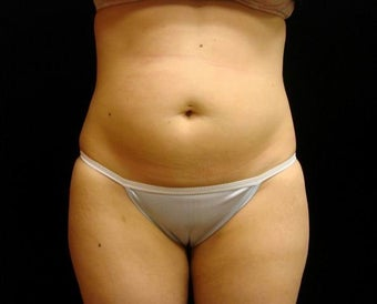 Cool Sculpting on Mid Abdomen before 523842