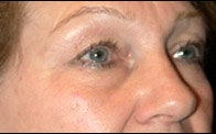 Eyelid Surgery before 373477