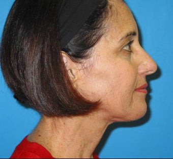 Limited Incision Neck Lift after 84222