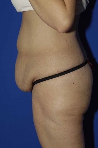 Tummy Tuck before 549898