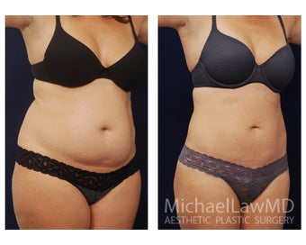 Liposuction after 397106