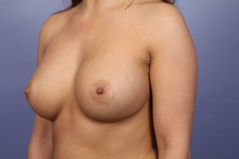 Breast Augmentation  after 338702