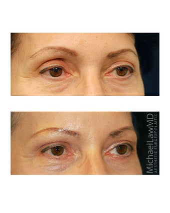 Facial Rejuvenation - Brow Lift 395967