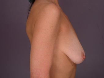 Breast Lift / Breast Augmentation before 291184