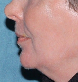 Laser resurfacing for mouth after 376158