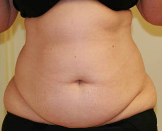 Abdominoplasty (Tummy Tuck) before 232367