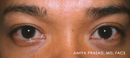 Male Asian Eyelid Surgery after 526428