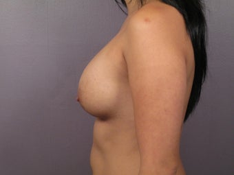 Breast Lift before 311086