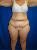 ummy Tuck (Abdominoplasty), Liposuction, Extended Tummy Tuck before 436280
