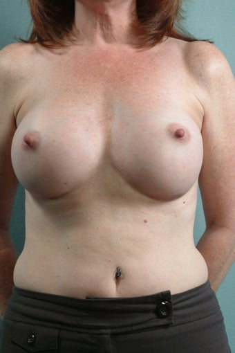 Breast Augmentation  after 240360