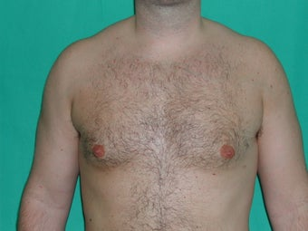Gynecomastia treated by Liposuction after 117049
