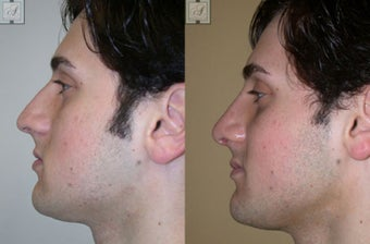 Primary Rhinoplasty before 346246