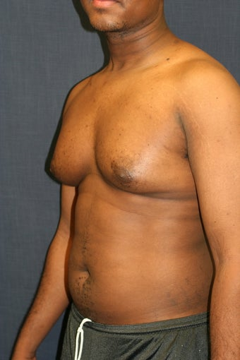 Gynecomastia before 509005