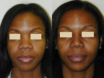 African American Rhinoplasty after 137714