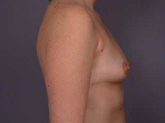 Breast Lift / Breast Augmentation  before 290989