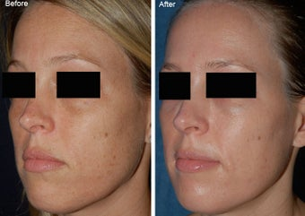 Fraxel Laser Resurfacing before 97892
