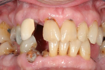Dental implants, all porcelain crowns before 503161