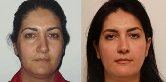 Facial Rejuvenation, non-surgical before 450125