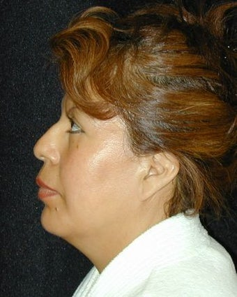Liposuction of Chin after 214683