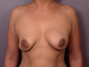 Breast Lift / Breast Augmentation  before 291024