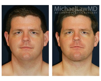 Lower Face and Neck Lift before 395848