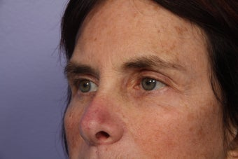 Eyelid Surgery  after 306454
