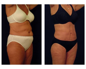 Liposuction after 397050