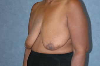 Breast lift before 480625