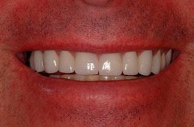 Smile Makeover With Empress All Ceramic Crowns after 96899