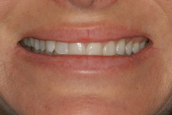 Porcelain Veneers before 213072
