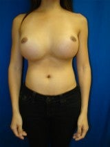 Revision Breast Surgery before 356593