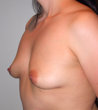 Breast Augmentation before 283274