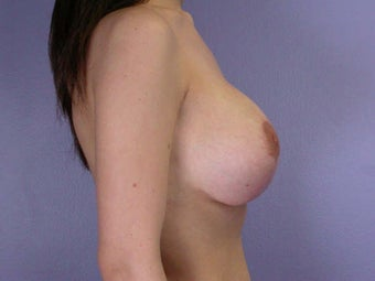 Breast Lift after 285364