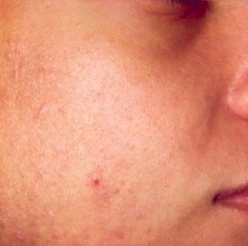 PDT for acne  after 376134