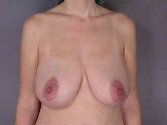 Breast Lift before 311067