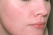 Laser Genesis for Overall Redness before 326789