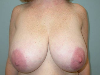 Breast Reduction before 148698