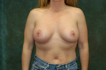 Women's Breast Augmentation: Enlarge and Minilift after 553811