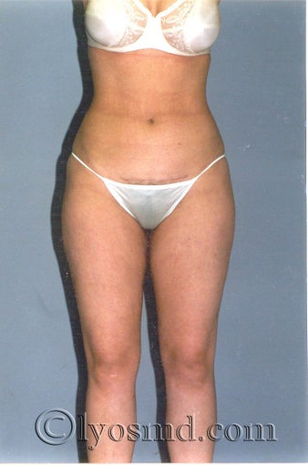 Liposuction after 225379