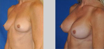 Flash Recovery Breast Augmentation TM before 253991
