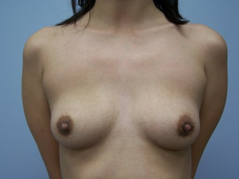 Breast Implant Removal after 590964
