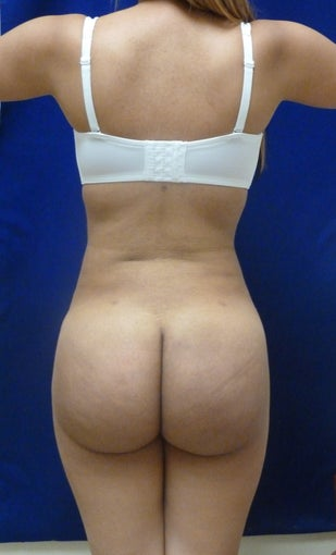 Buttock Augmentation after 626014