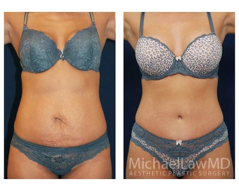 Abdominoplasty - Tummy Tuck before 396068
