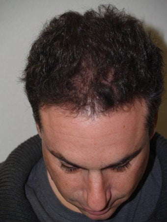 Hair Transplant after 279196
