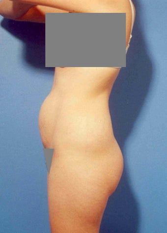 Abdominoplasty before 356332