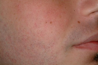 Acne treatment with Accutane after 95915