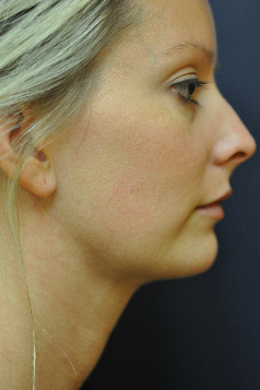 Jawline / Neck Lipo after 624697
